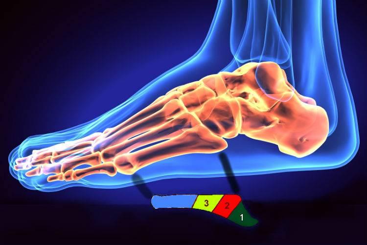 calzado metatarsal como proteger el pie